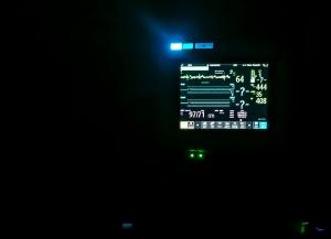 IMG_4009_heart monitor
